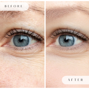 Before and After Treatment of Crow's Feet with Botox
